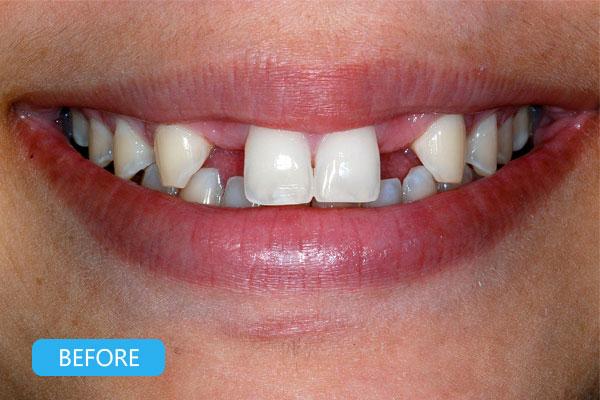 Types of dental implants - Dental implants procedure
