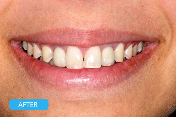 Types of dental implants - Dental implants procedure - Dental